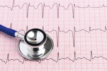 L'elettrocardiogramma: storia e significato
